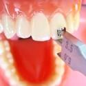 Posicionamiento alambre ortodoncia